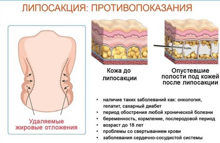 kas kiud eemaldab rasva kehast kaalulangus ule 45