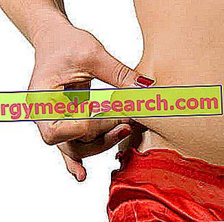 rasva poletamine armastuse kaepidemetest eemaldage poletatud rasva ahi