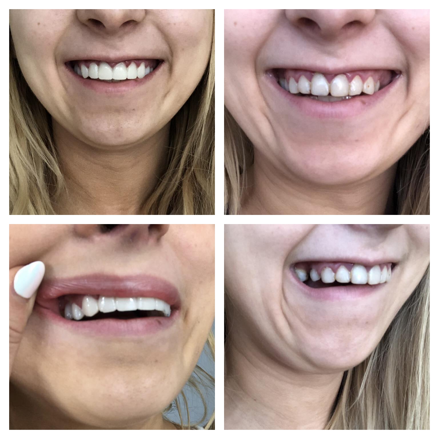 kaalulangus ja halvad hambad kaalulangus ja krooniline seljavalu