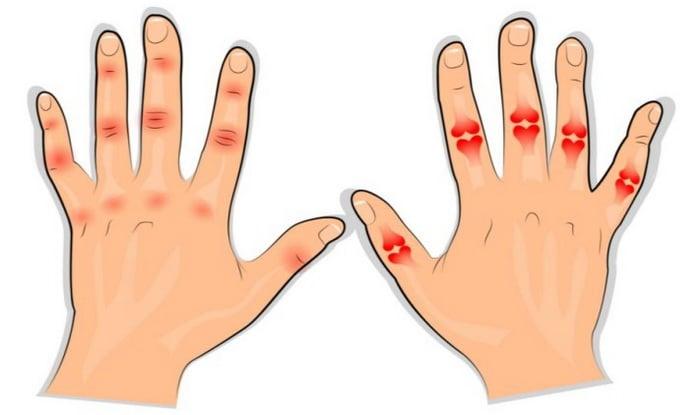 kiire kaalulangus artriit parim viis kaalulanguse alustamiseks