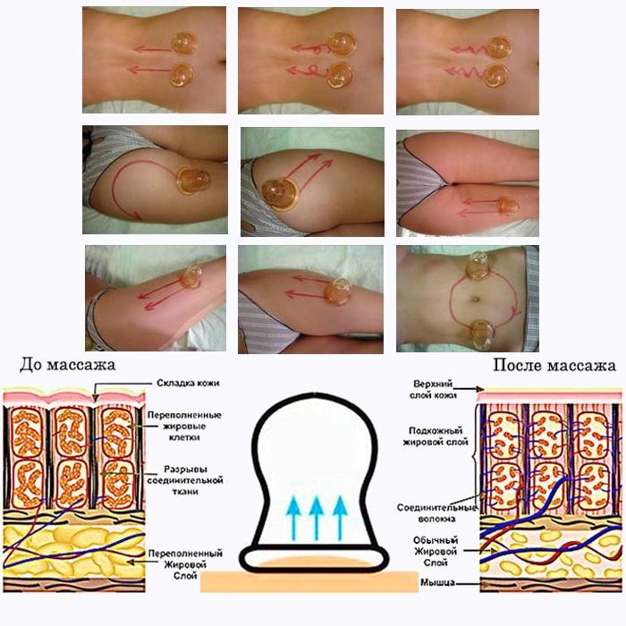 protseduur rasva eemaldamiseks reiedest